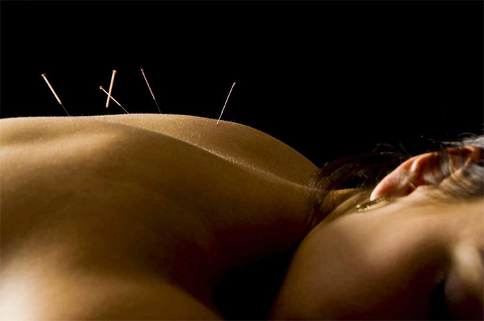 Akupunktur ved Karen Bro